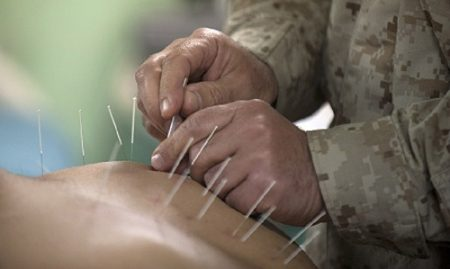 dry needling vs acupuncture