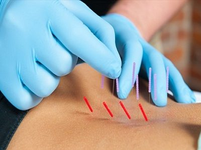 dry-needling