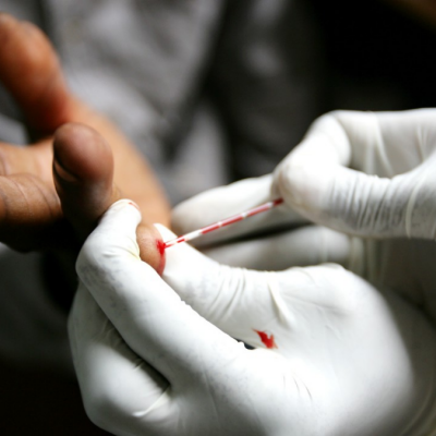 HIV Tests